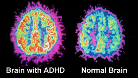 How ADHD Brain Functions Differently