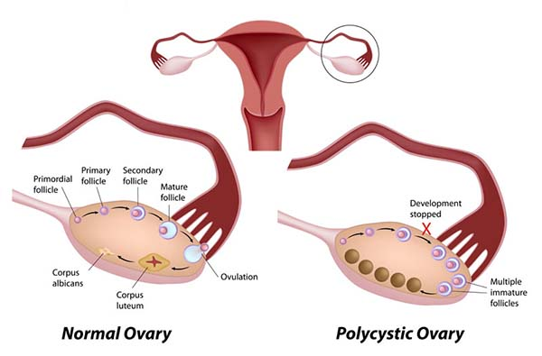 autism and PCOS
