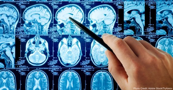 cerebrospinal fluid and causes of autism